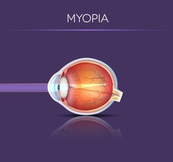 Myopia (Nearsightedness)