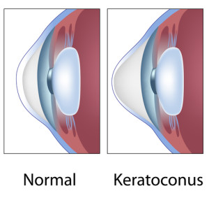 Keratoconus | Takle Eye Group