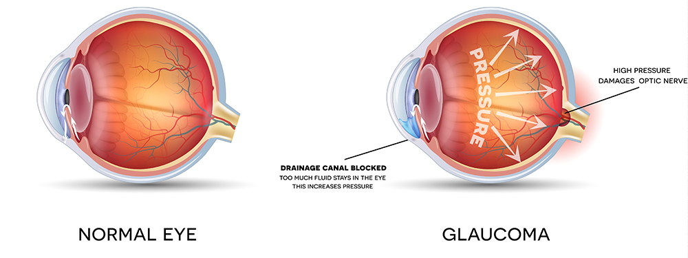 Chart Showing How Glaucoma Affects the Eye
