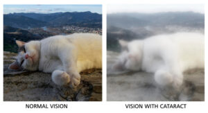 Normal Vision vs Vision with Cataract